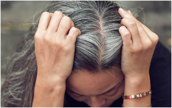 30% de todas as mulheres do mundo sofrerão com algum problema relacionado a calvície após os 50 anos de idade