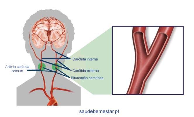 Estenose da carótida é uma das causas do AVC